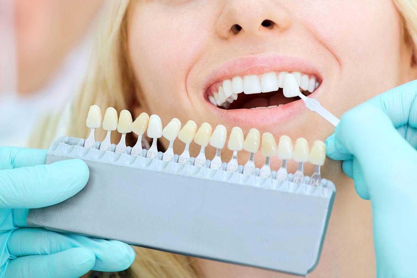Blanqueamiento dental Estepona