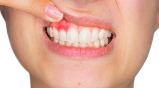 Enfermedad gingivitis