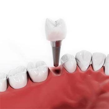 Implantología en Estepona