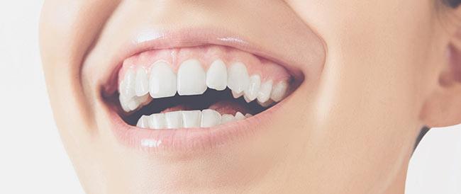 Sonrisa con enfermedad periodontal
