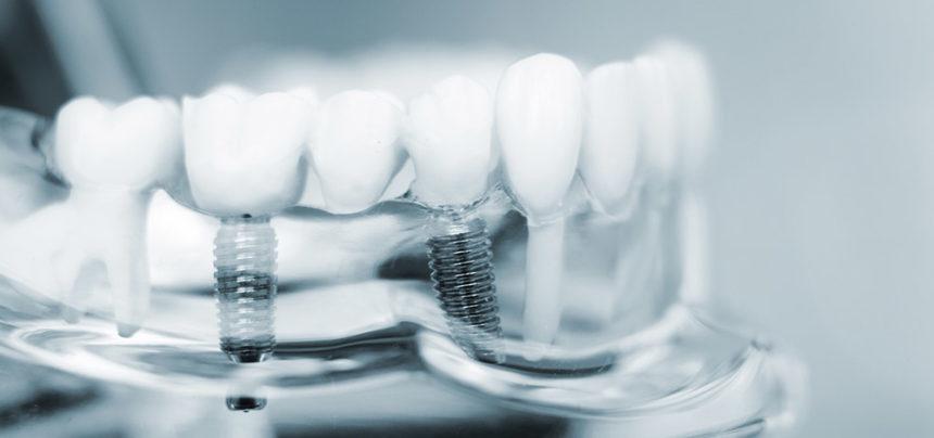 Colocación de los implantes dentales