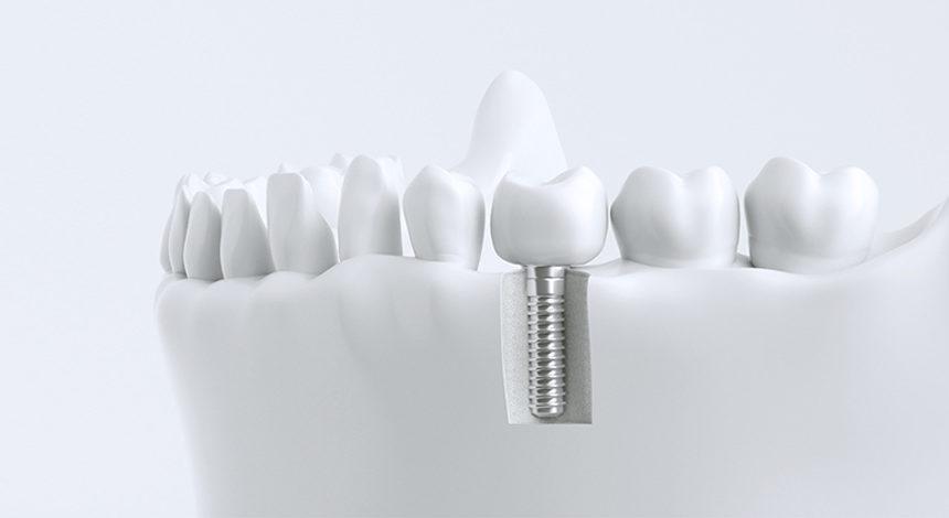 Preguntas y mitos sobre los implantes dentales