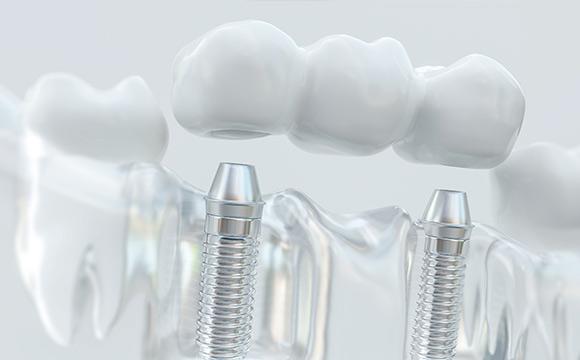 Puente con implantes