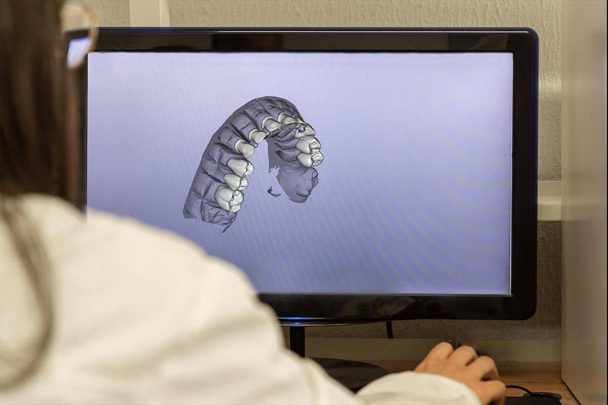 Planificación ortodoncia 3D