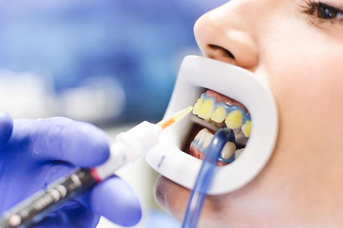 Gel blanqueador en los dientes
