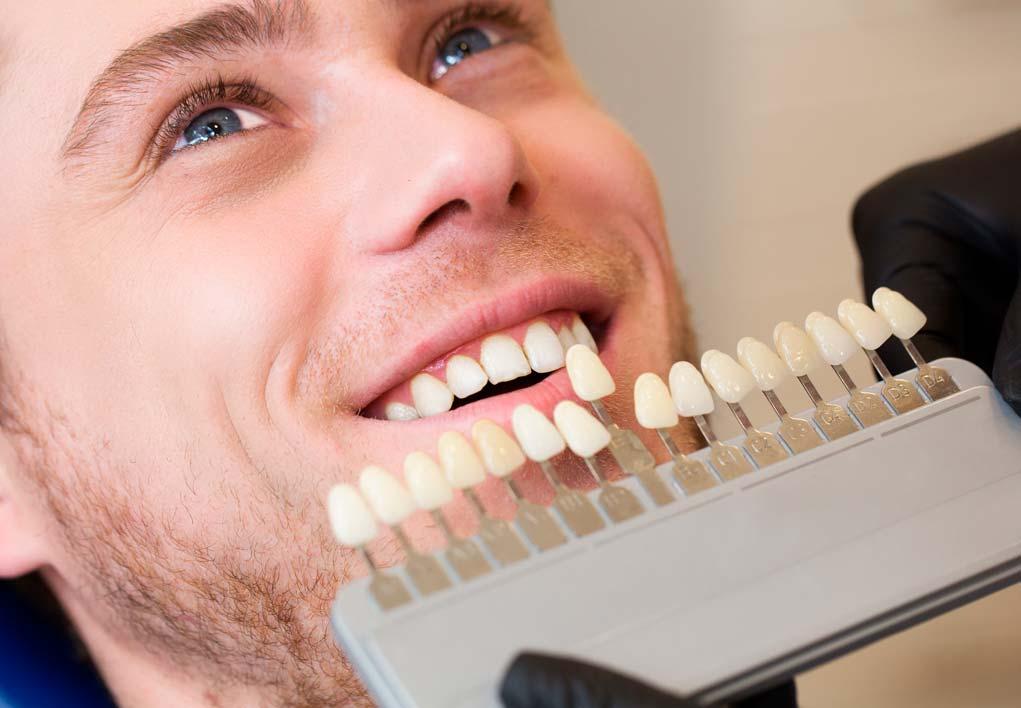 Tonalidad, color del diente