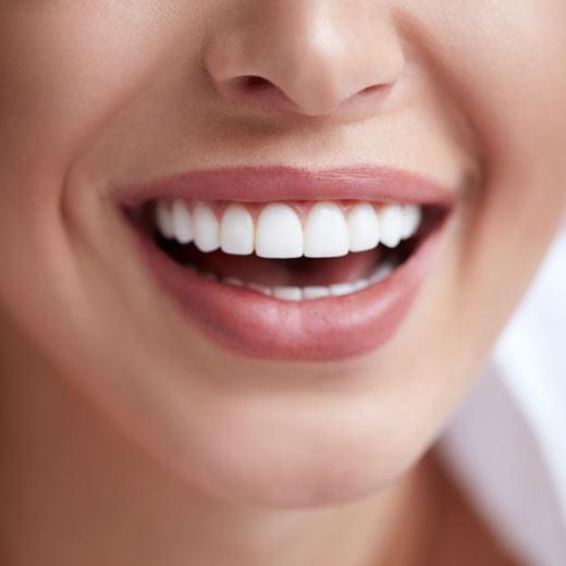 Carillas dentales para que sirven