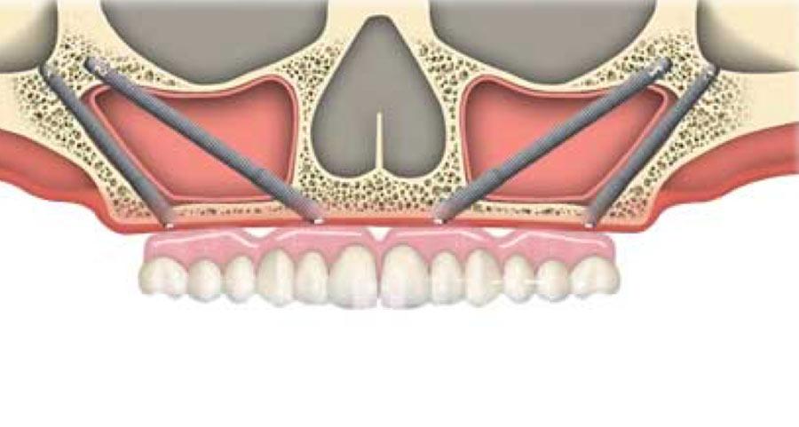 Implantes Zygoma
