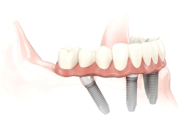 Implantes All on 4 en Estepona