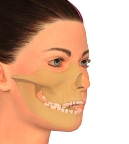Cirugía ortognática del maxilar – Mordida abierta