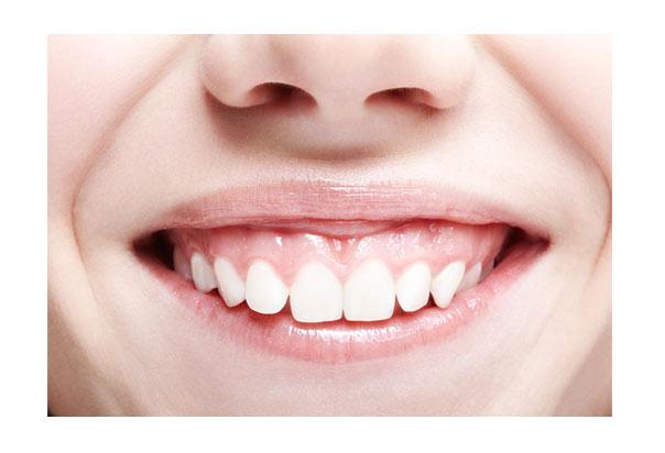Paciente con sonrisa gingival