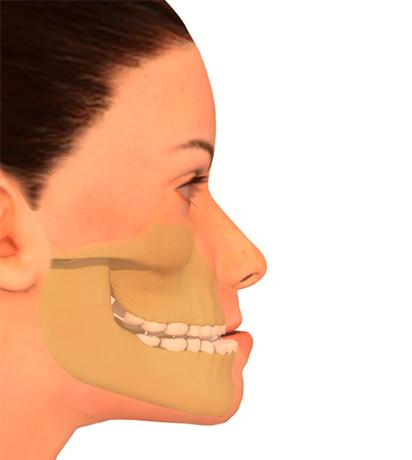 Cirugía ortognática del maxilar - Prognatismo mandibular