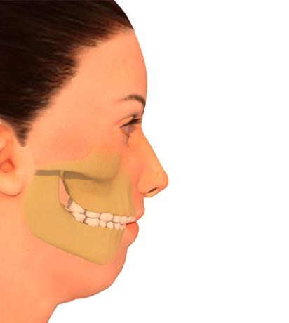 Cirugía ortognática de la mandíbula - Retrognatia mandibular