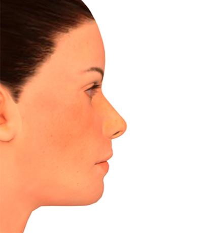 Cirugía Ortognática Cenyt Dental